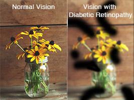 diabetesvision